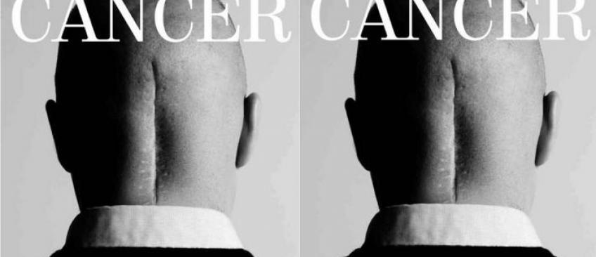 La photo choc en Une de quotidiens espagnols en hommage aux survivants du cancer