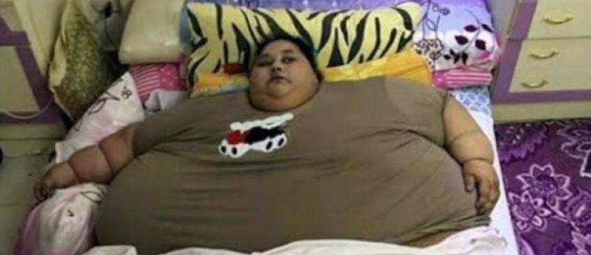 En à peine deux mois, la femme la plus grosse du monde perd 250 kilos - Découvrez comment !