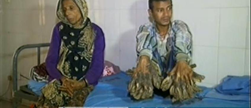 """Bangladesh: un """"homme-arbre"""" aux excroissances impressionnantes va être opéré! - VIDEO"""