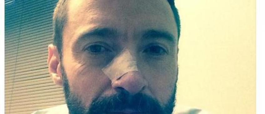 Cancer : Hugh Jackman a de nouveau dû se faire enlever un carcinome basocellulaire au niveau du nez
