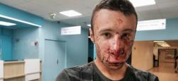 Gilets Jaunes : Un journaliste a-t-il été blessé samedi après-midi lors de la manifestation Place d'Italie à Paris ? (Attention images choquantes)