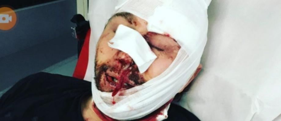 Loi Sécurité Globale : Un journaliste qui couvrait la manifestation frappé à coups de matraque par des policiers à Paris selon Reporters sans Frontières