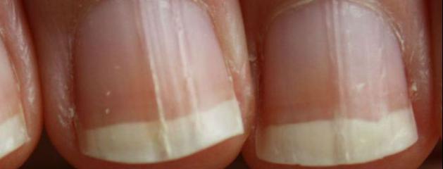 sante des ongles des mains