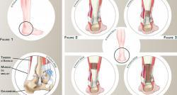 Qu'est-ce qu'une rupture du tendon d'Achille ? En quoi consiste l'opération ? Voici toutes les explications !