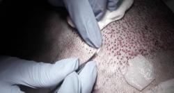 Vous songer avoir recours à une greffe capillaire ? Voici les deux techniques les plus prisées !